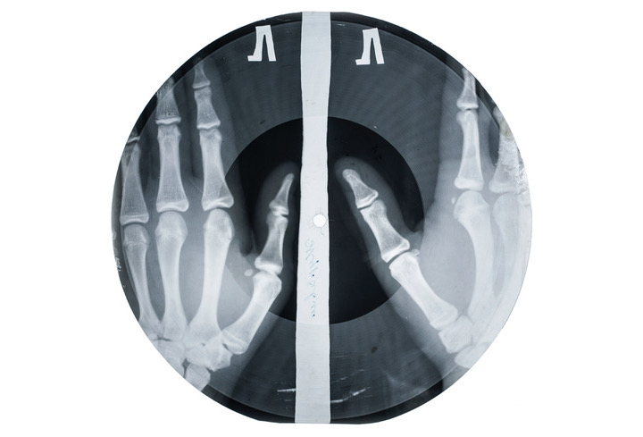 Record made out of an X-ray of two hands